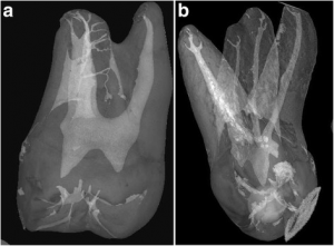 8-Micro-CT-scan-a-b-Apical-termination-of-the-buccal-canals-on-two-maxillary-molars